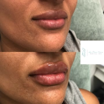 Lip Injections Before & After